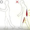 脊柱菅狭窄症は背骨の負担のかかる歩き方を変えない限り良くならない